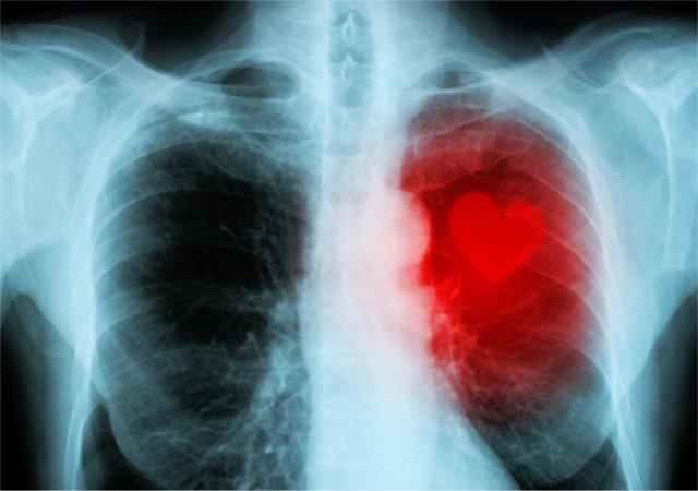 cardiomyopathy heart disease